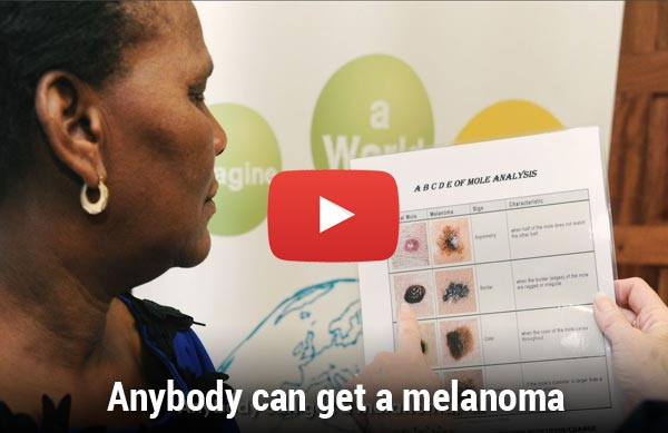 Video: Anybody can get a melanoma